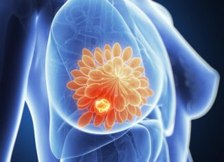Breast Cancer Surgery: Less Is Better? Review of the Study From JAMA